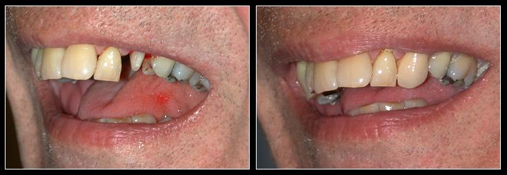 Single Crown teeth