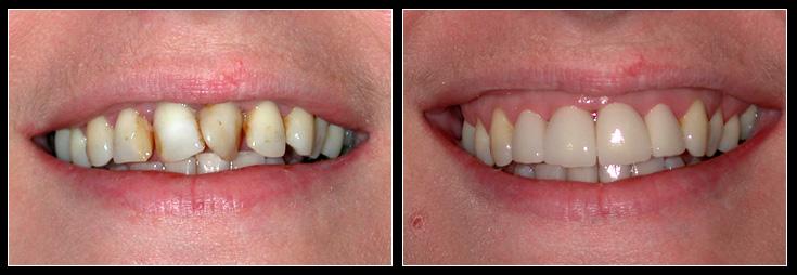 Twisted Teeth to straight teeth