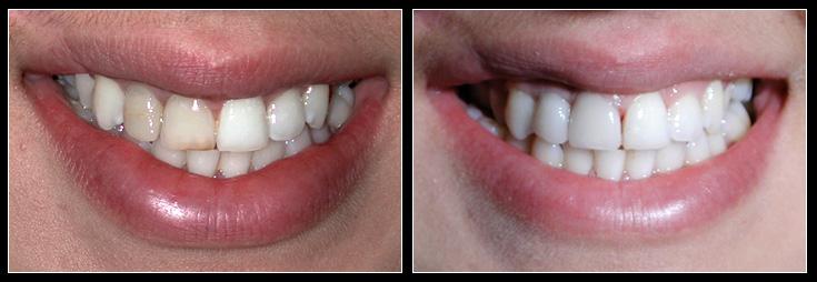Discoloured teeth whitened