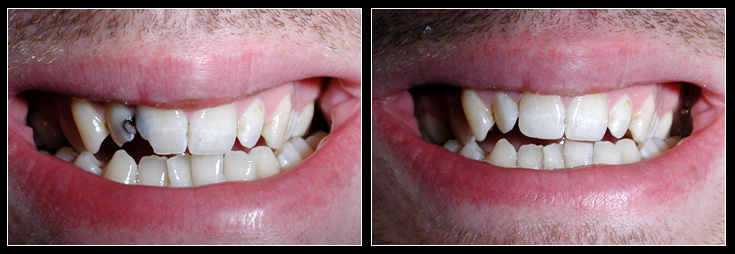 Decayed teeth filled with tooth coloured fillings
